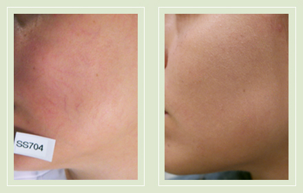 spider-vein-facial-vein-treatment-removal-before-after-pics-01