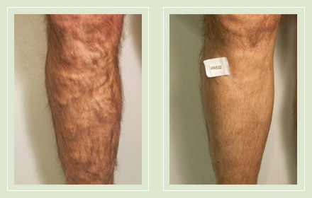 Before and after pic EVLT Mini Phlebectomy leg varicose vein