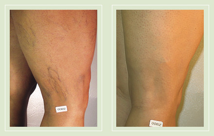 before after pictures varicose vein leg treatment 8