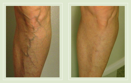 Before and After pic reticular spider leg vein sclerotherapy 64yo