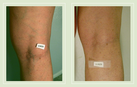Before and after pics spider vein leg sclerotherapy