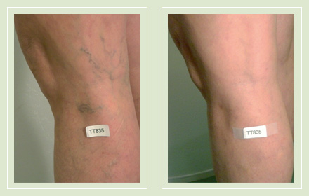 Before and after pics-leg spider reticular vein sclerotherapy 53yo