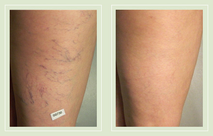 before after pictures spider vein leg treatment 4