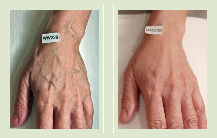 varicose-hand-vein-removal-before-after-pics-10