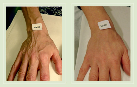 varicose-hand-vein-removal-before-after-pics-4