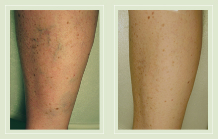 before after pictures varicose vein treatment legs 12
