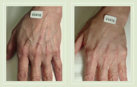 hand-vein-removal-before-after-pics-1