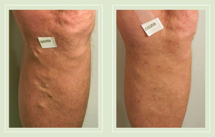 before after pictures varicose vein leg treatment 11