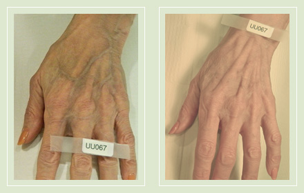 hand-vein-removal-before-after-pics-10