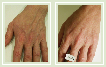 varicose-hand-vein-removal-before-after-pics-2