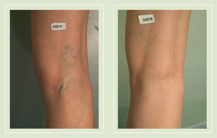 before after pictures varicose vein leg treatment 1