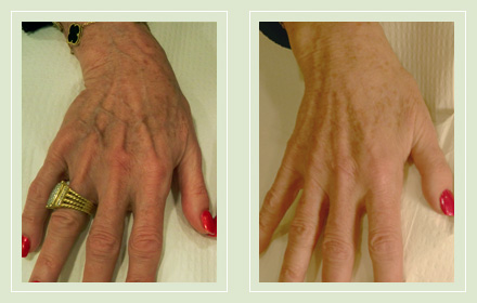 hand-vein-removal-before-after-pics-6