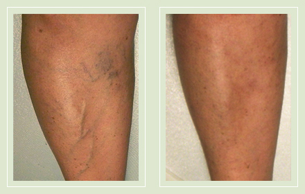 before after pictures varicose vein leg treatment 10