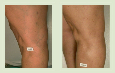 before after pictures varicose vein treatment legs 14