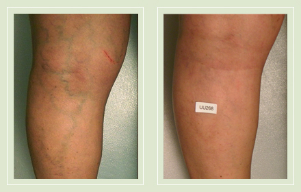 before after pictures varicose vein leg treatment 6