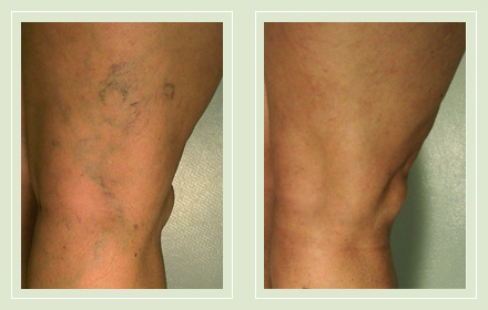 before after pictures varicose vein treatment legs 13