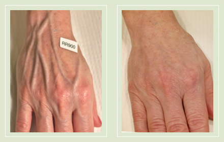 varicose-hand-vein-removal-before-after-pics-8
