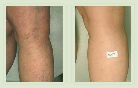 before after pictures varicose vein leg treatment 2