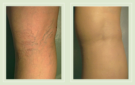 Before and after pic spider vein leg sclerotherapy 34yo