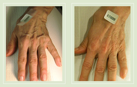 hand-vein-removal-before-after-pics-4