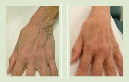 varicose-hand-vein-removal-before-after-pics-1
