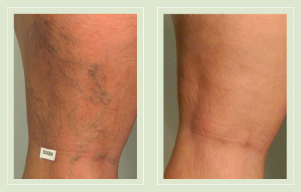 Before and after leg varicose vein sclerotherapy Mini Phlebectomy 36yo