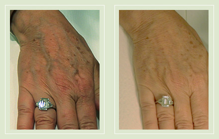 varicose-hand-vein-removal-before-after-pics-7