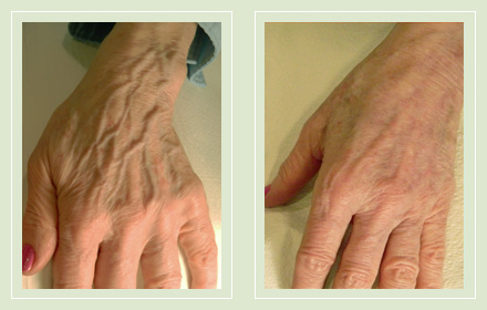 hand-vein-removal-before-after-pics-7