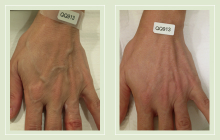 varicose-hand-vein-removal-before-after-pics-9