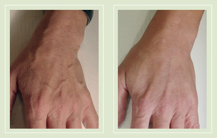 hand-vein-removal-before-after-pics-2