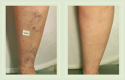 Before and After legs spider reticular sclerotherapy 68yo