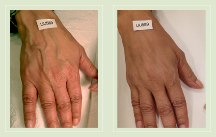 varicose-hand-vein-removal-before-after-pics-6