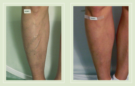 before after pictures varicose vein leg treatment