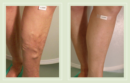 Before and After pictures varicose vein leg sclerotherapy