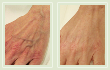 hand-vein-removal-before-after-pics-8