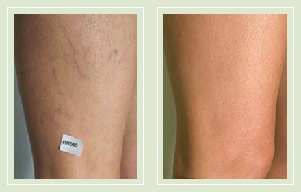 Before and after pics spider leg vein sclerotherapy 43yo