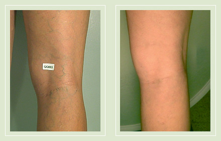 Before and after pic leg reticular spider vein sclerotherapy 48yo