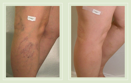 Before and after pics-spider vein sclerotherapy