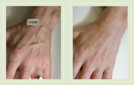 varicose-hand-vein-removal-before-after-pics-5