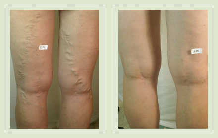 before after pictures varicose vein treatment legs-20