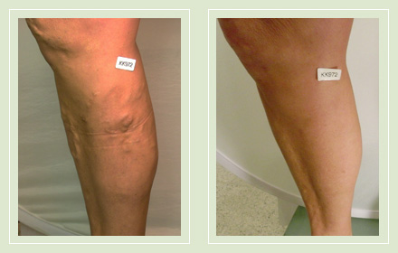 Before and After pic leg varicose vein EVLT Mini Phlebectomy