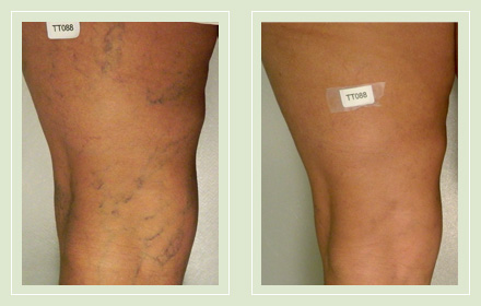 Before and after pic leg reticular spider vein sclerotherapy 56yo