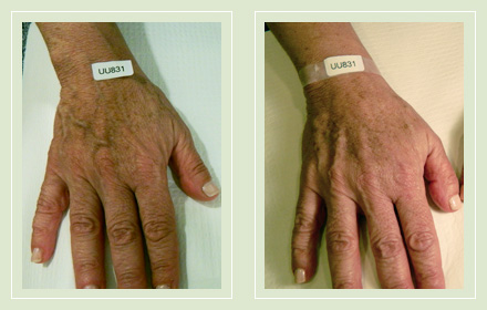 hand-vein-removal-before-after-pics-5