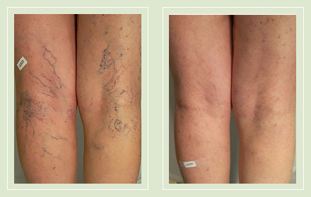 Before and after pic leg spider reticular vein sclerotherapy 61yo