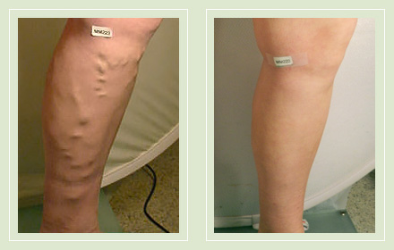 Before and After pics-Varicose Vein Mini Phlebectomy EVLT