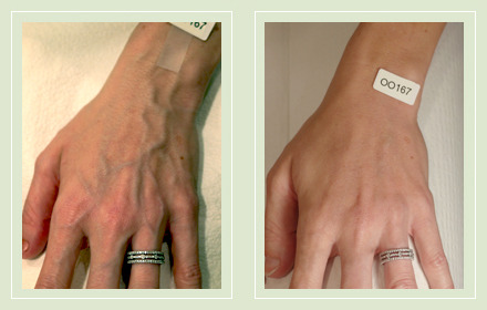 varicose-hand-vein-removal-before-after-pics-3