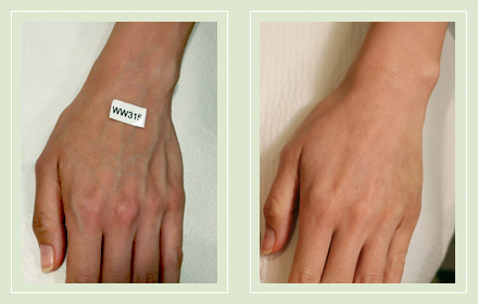hand-vein-removal-before-after-pics-3
