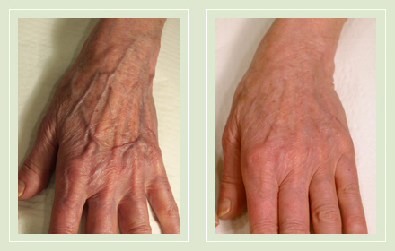hand-vein-removal-before-after-pics-11