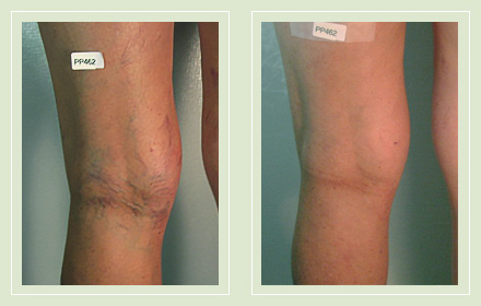 before and after pic reticular spider vein sclerotherapy 56yo