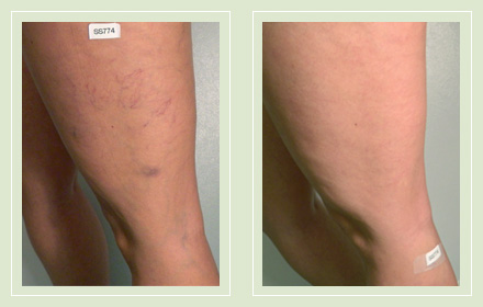 Before and after leg spider reticular vein sclerotherapy 56yo
